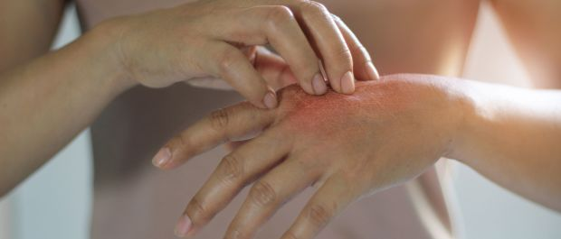 Does Psoriasis Affect Women Differently? image