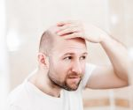 5 Top Causes of Hair Loss