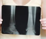 5 Common Osteoporosis Myths, Debunked