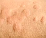 What's On My Skin? 8 Common Bumps, Lumps and Growths
