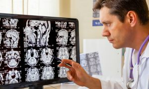 5 Treatment Options for Epilepsy
