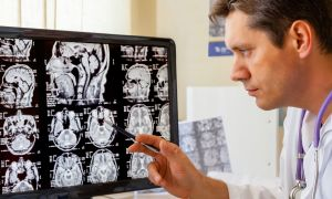 Brain Chemical May Be Linked to Autism
