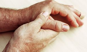 CDC Says 10 Percent of Adults Limited by Arthritis