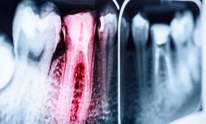 Are Dental X-Rays a Health Risk?