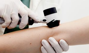 Know Before You Go: Skin Biopsy