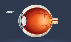 Cataract Surgery May Add Years to Your Life
