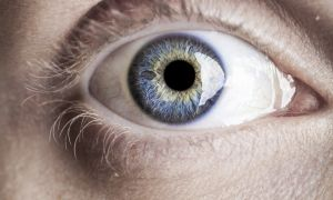 Looking for Stroke Risks in Eyeball Photos