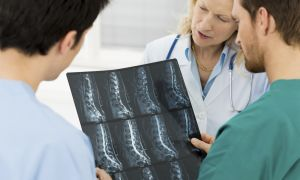Stenosis Headline Not In Sync With Study