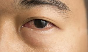 Cholesterol Deposits Around the Eyes Signals Heart Problems