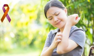 Psoriasis and Psoriatic Arthritis: Getting Started