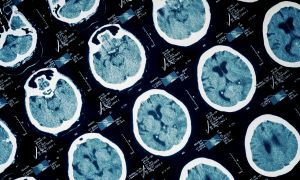 Do Brain Injuries Lead to Dementia?