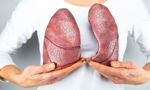 Different Types of Lung Cancer, Explained