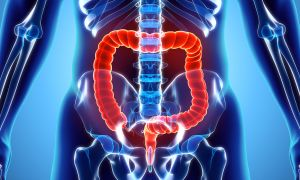 News: Colorectal Cancer Screenings Should Start at 45, Says American Cancer Society