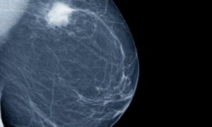 Symptoms of Breast Cancer You Shouldn't Ignore