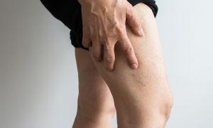 cum de a vindeca picioarele în varios după naștere
