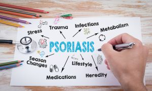 6 Psoriasis Topics to Discuss With Your Healthcare Provider