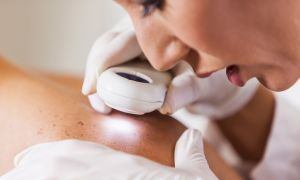 5 Different Skin Spots and What They May Mean