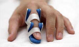 Study Finds Injury Triggers Psoriatic Arthritis