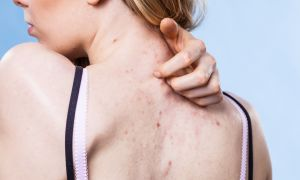 Hidradenitis Suppurativa: Symptoms, Severity and Stages