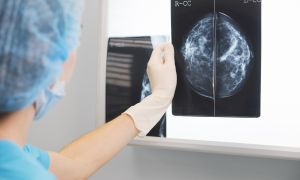 Your COVID Vaccine Might Affect the Results of Your Next Mammogram