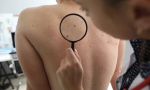 Why People with Ulcerative Colitis Need to See a Dermatologist