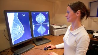 Who Benefits Most from 3D Mammograms
