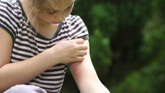 Bug Bite Symptoms You Should Never Ignore