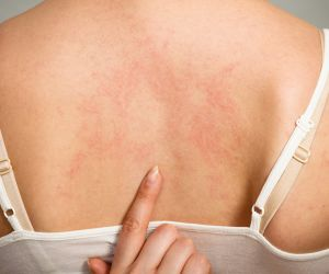 What Causes Hives?
