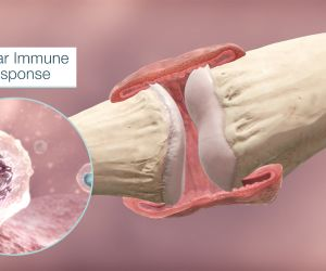 An Interactive Look at Rheumatoid Arthritis