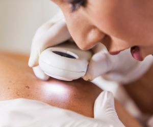 5 Skin Cancer Spots and What They May Mean