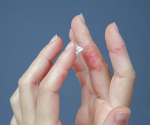 5 Different Ways to Look at Atopic Dermatitis