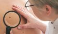 Regular Doctor Visits May Help You Survive Skin Cancer