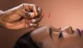 What You Need to Know About Acupuncture