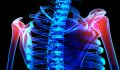 Osteoporosis Screening and Diagnosis