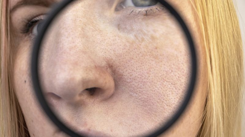 Skin Cancer: What You Need to Know Now