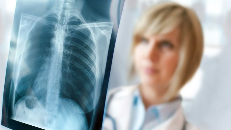 Is Your CT Scan or X-ray Necessary?