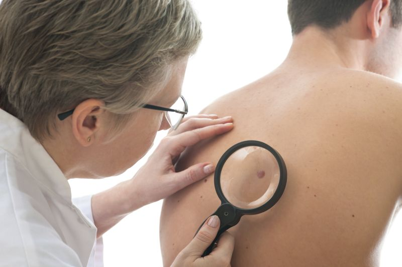 Melanoma Diagnosis More Deadly for Men than Women