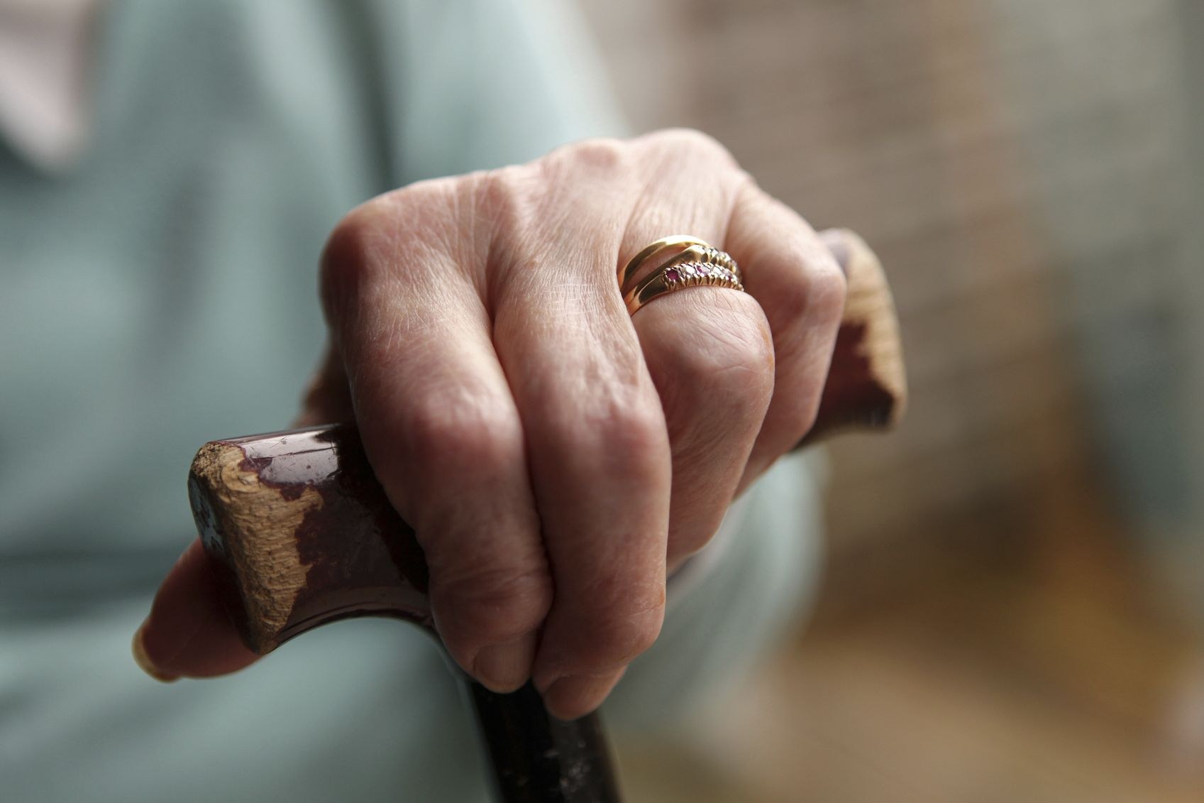 Biologics May Reduce the Need for Assistive Devices in RA Patients