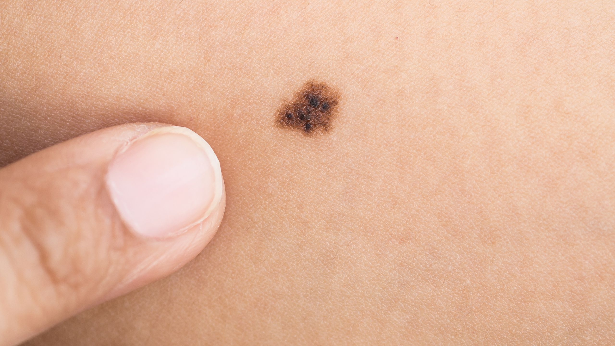 What to do if moles are inflamed 55