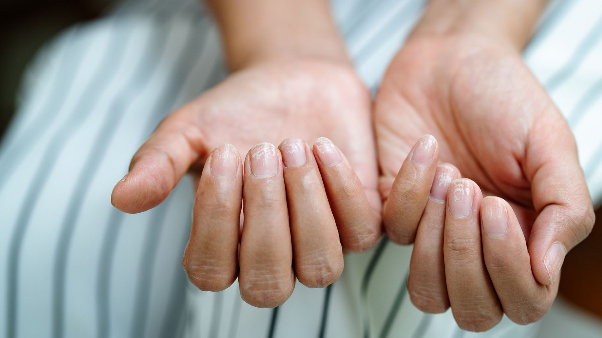 Psoriatic Arthritis: A Guide to Better Hand and Foot Care