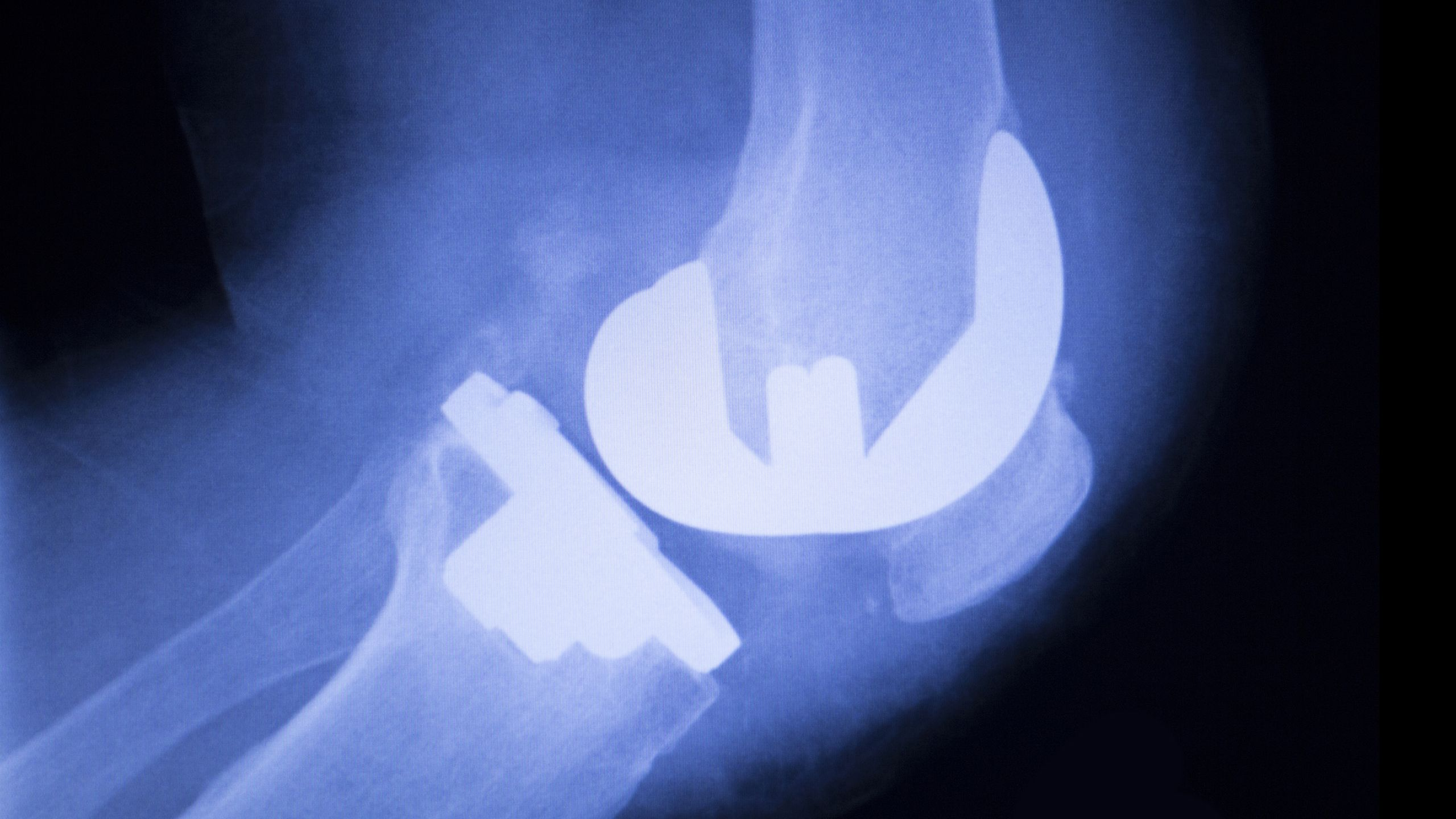Why Knee Replacements Are On the Rise