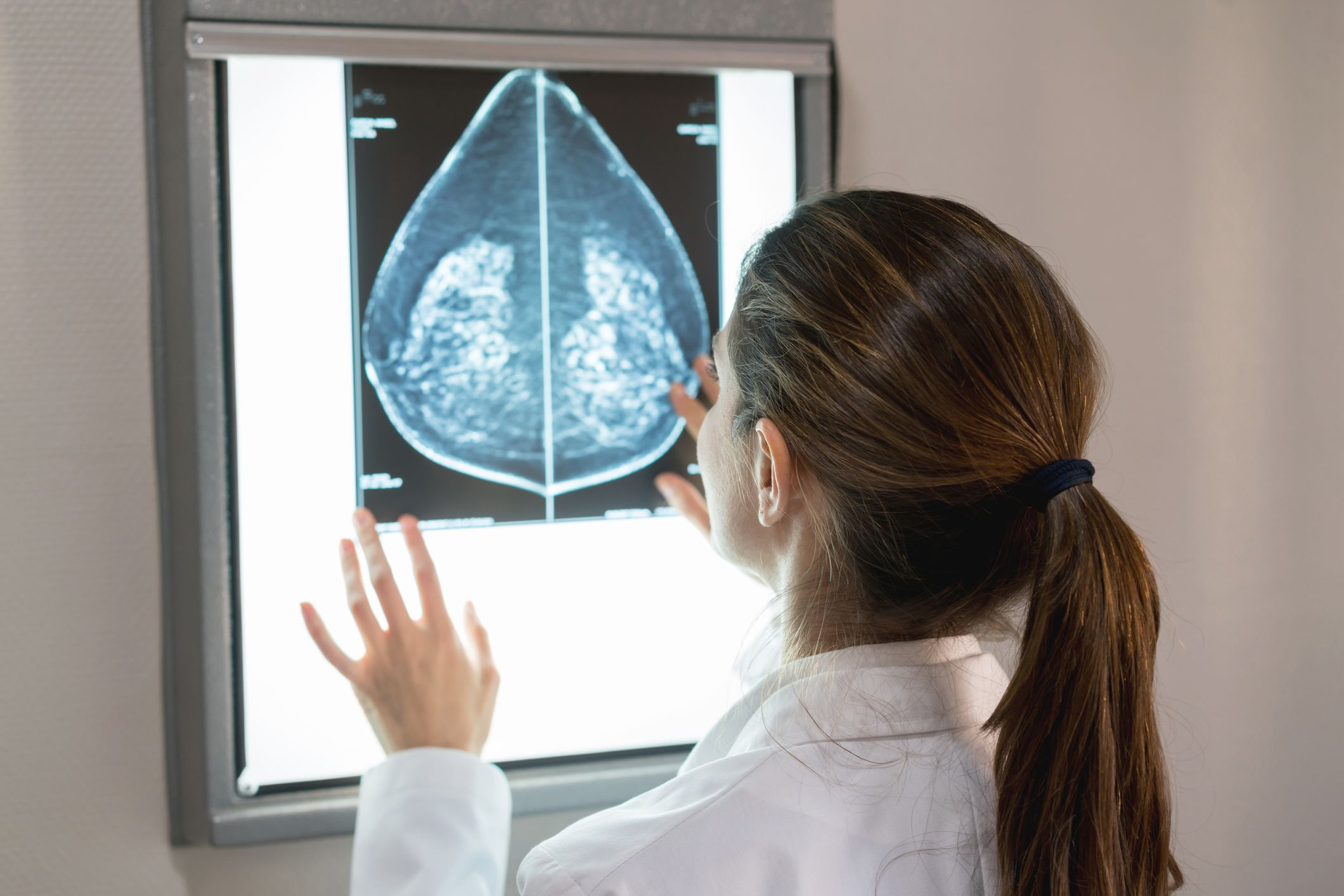 Essential Facts About Breast Cancer Surgery