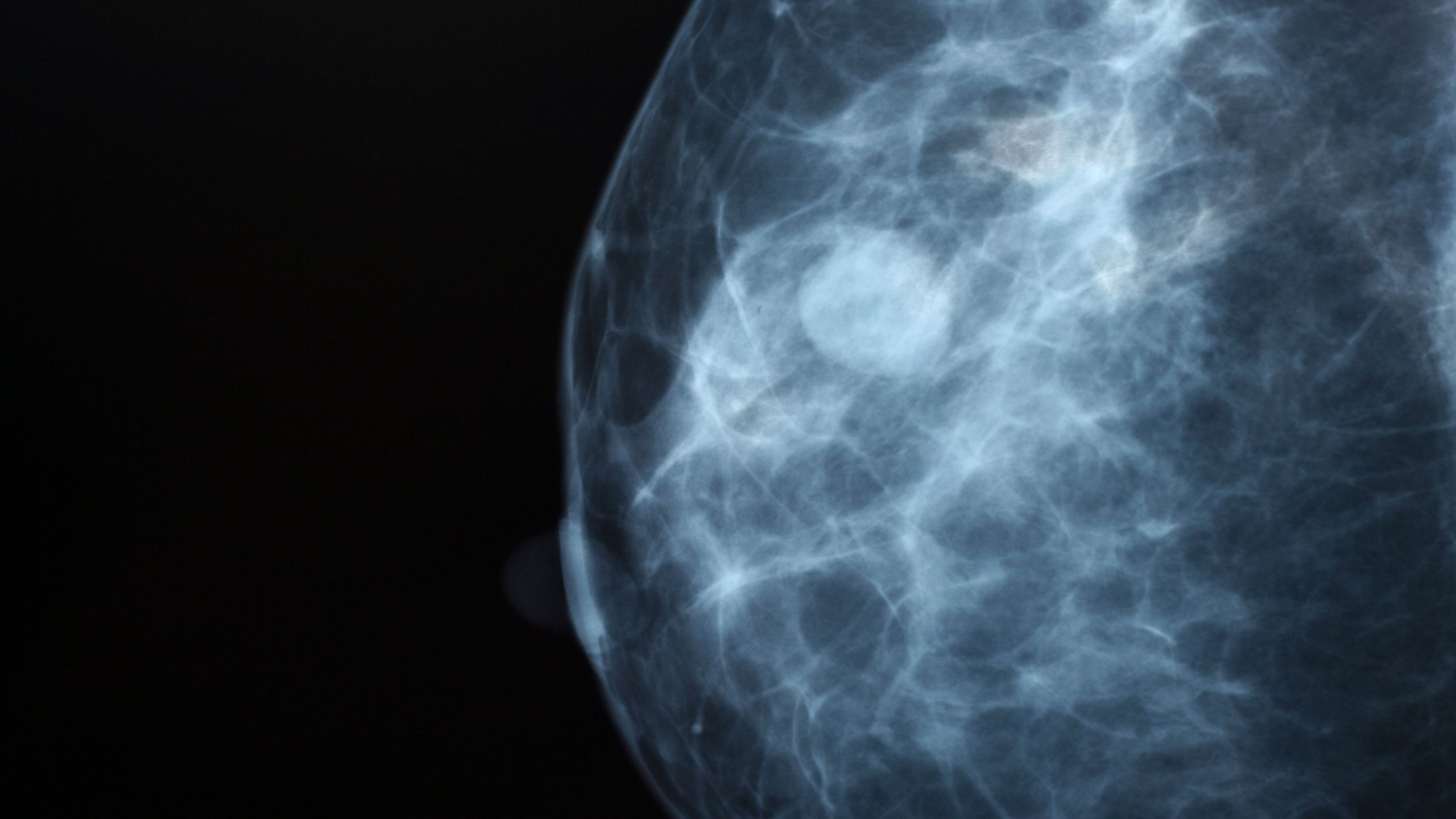 I Had a Mammogram Come Back Positive... Should I Be Worried?