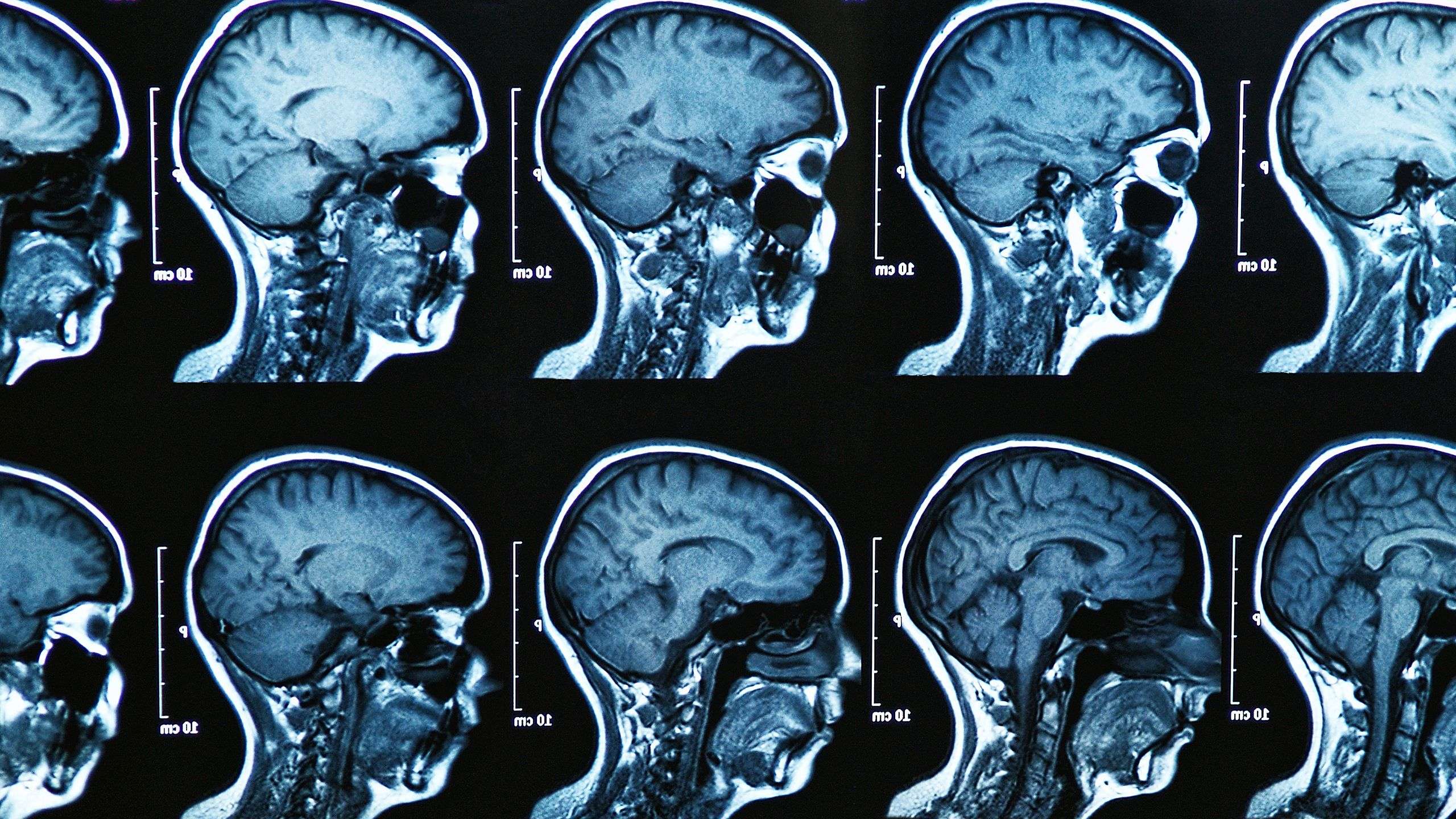 What You Need To Know About Amyotrophic Lateral Sclerosis