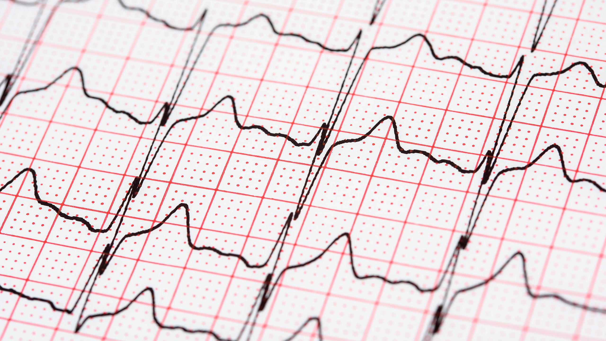 What You Need to Know About Atrial Fibrillation