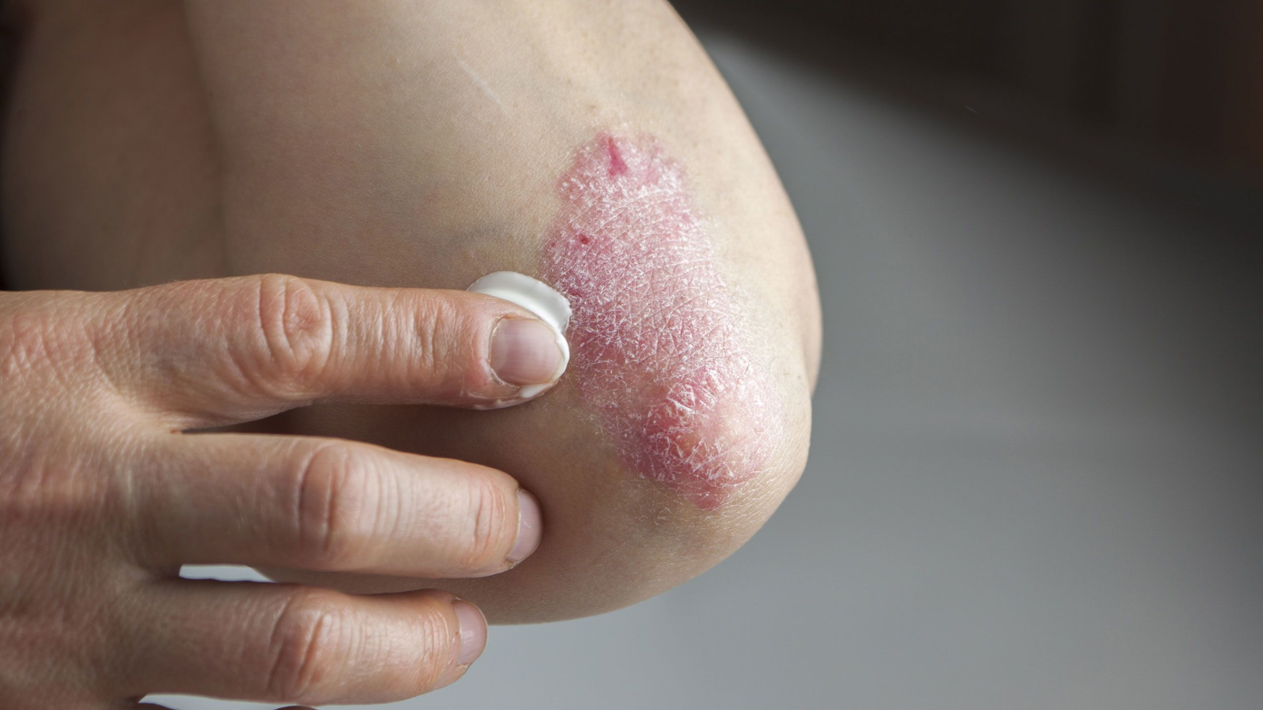 All-Access Guide to Five Common Skin Conditions