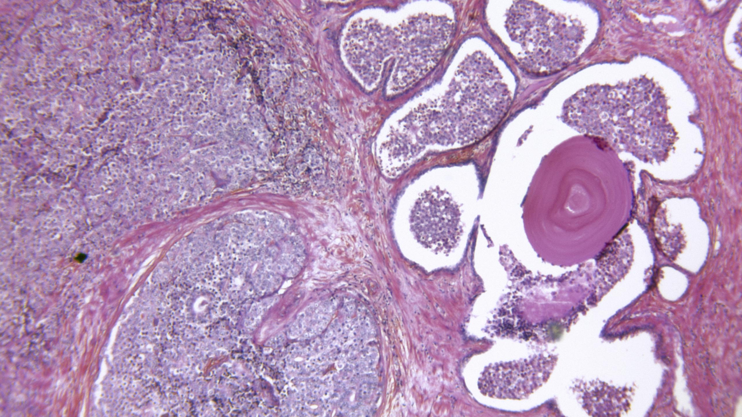 Is It Prostate Cancer—or Something Else?
