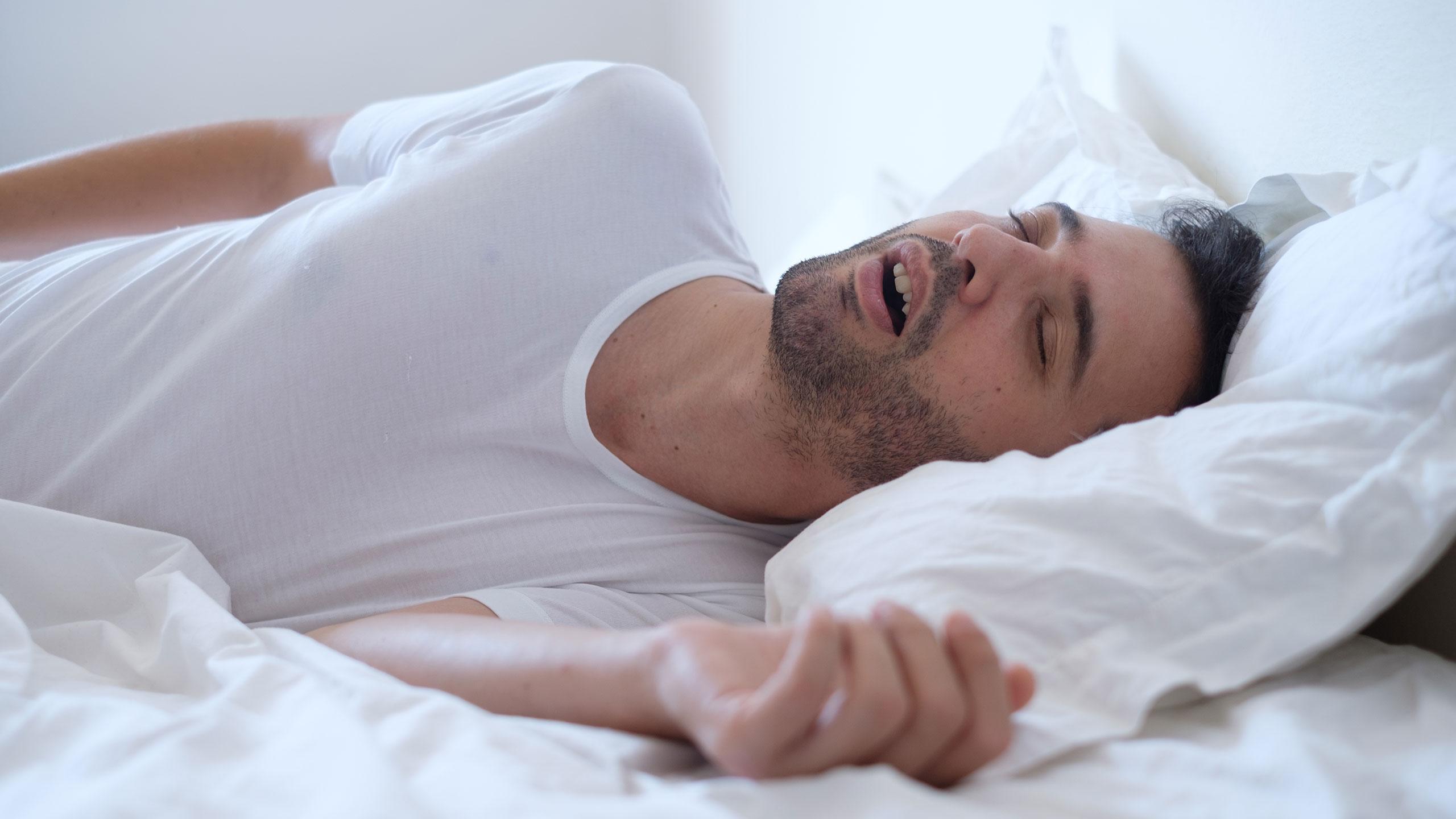 Sleep Apnea image
