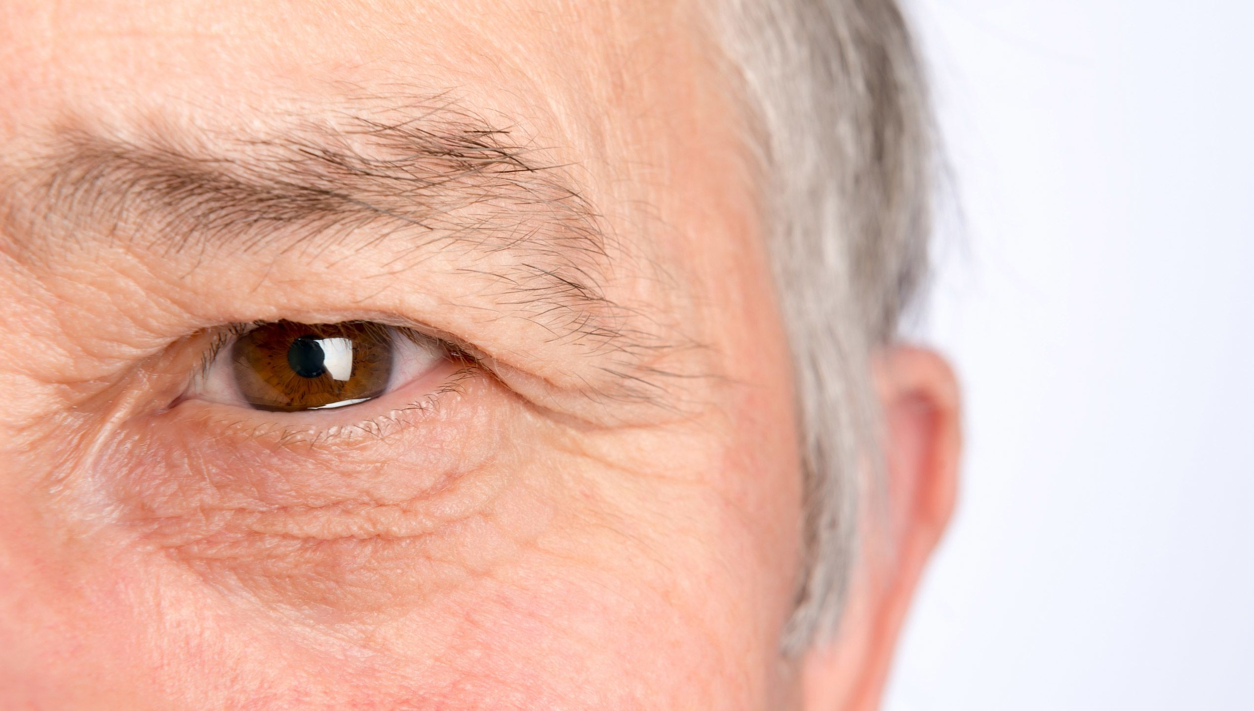Droopy Eyelids: More Than Just Looks - Sharecare
