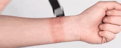 watch-band-rash